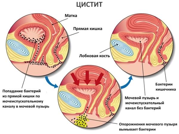 Цистит во втором триместре беременности