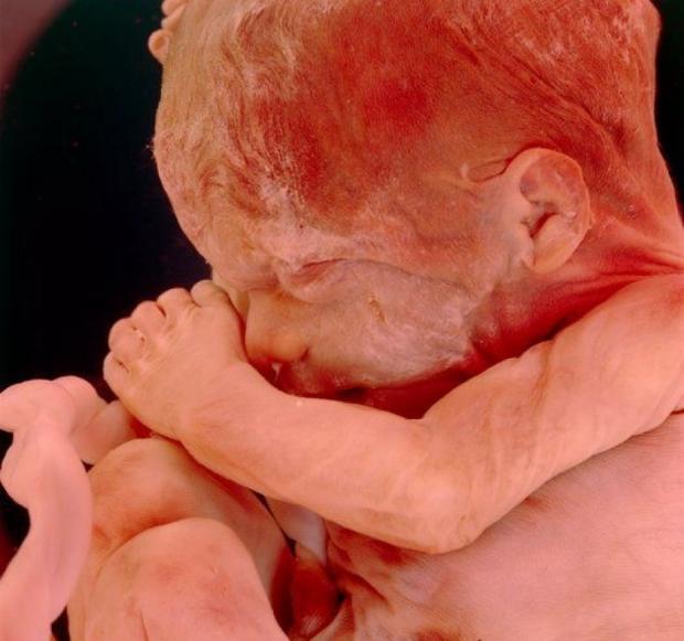 УЗИ на 16 неделе во время беременности, что показывает