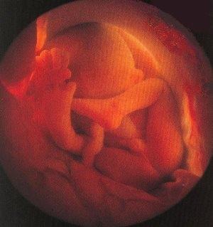 26 недель беременности фото