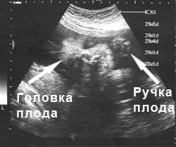 УЗИ в 30 недель развития ребенка