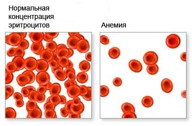 Анемический синдром