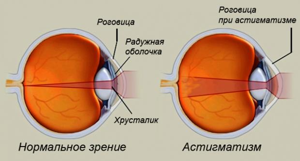 Заболевания плохим зрением