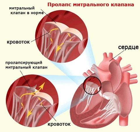 Пролапс митрального клапана у беременных – причины, симптомы ...
