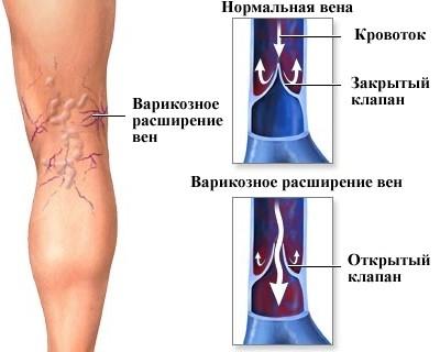 Варикозе в матке симптомы