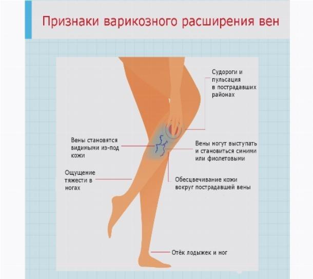 Лечение варикоза хирургическим методом