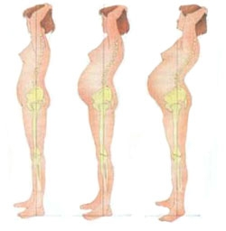 Упражнения при обострении остеохондроза шейного отдела позвоночника