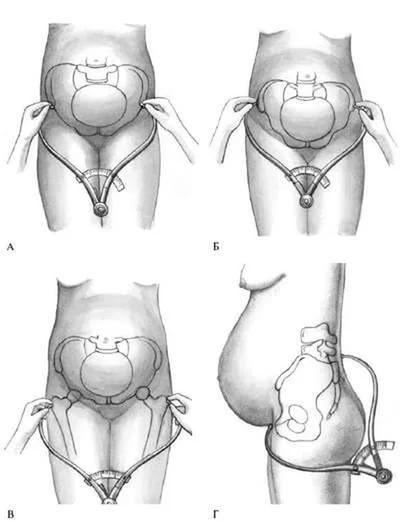 Наружное измерение таза у беременных