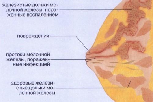 Как размять уплотнения при лактостазе