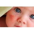 Как быстро проявляется аллергия на смесь