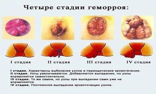 Чем лечить геморрой 3 триместр беременности
