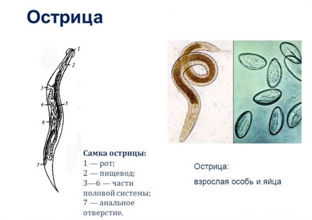zud-v-analnoy-oblasti-ostritsi