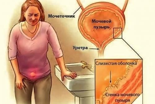 Зуд в мочеиспускательном канале у женщин при беременности