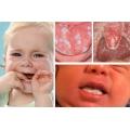Стоматит у годовалого ребенка